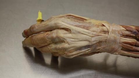 Thumbnail for entry 30-B Dorsum of hand
