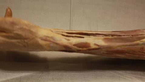 Thumbnail for entry 28-E cephalic vein