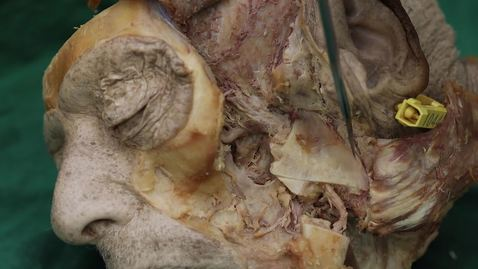 Thumbnail for entry Temporomandibular joint