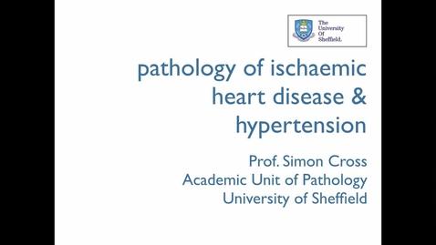 Thumbnail for entry Pathology of ischaemic heart disease and hypertension - Prof Simon Cross