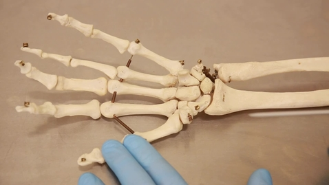 Thumbnail for entry 30-H Bones of the hand